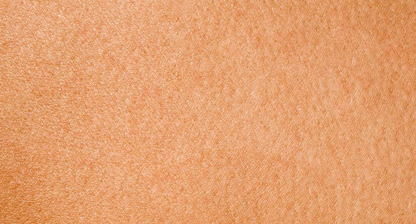 How to care for combination skin: Causes, treatment and prevention advice