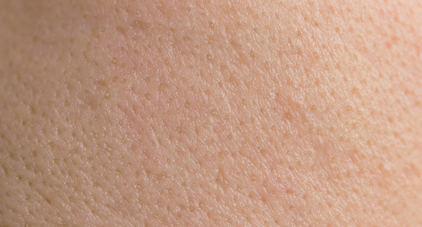 How to care for oily skin: Causes, treatment and prevention advice
